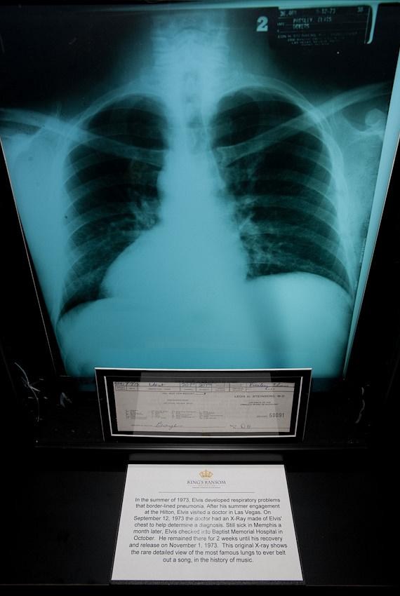 X-ray of Elvis' lungs during hospital visit