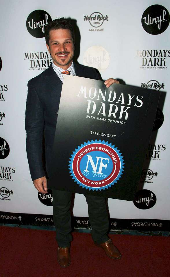 "Mark Shunock's ""Mondays Dark"" Raises Funds for the Neurofibromatosis Network"