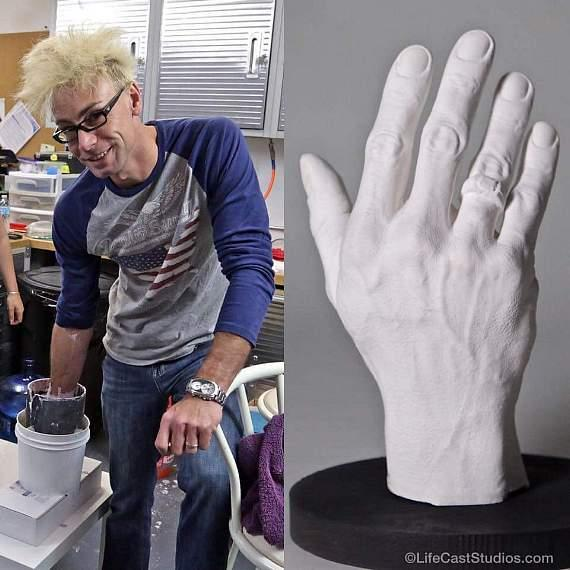 Murray makes a cast of his hand